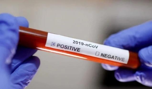 Coronavirus Positive