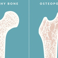 All you need to know about Osteoporosis and its treatment